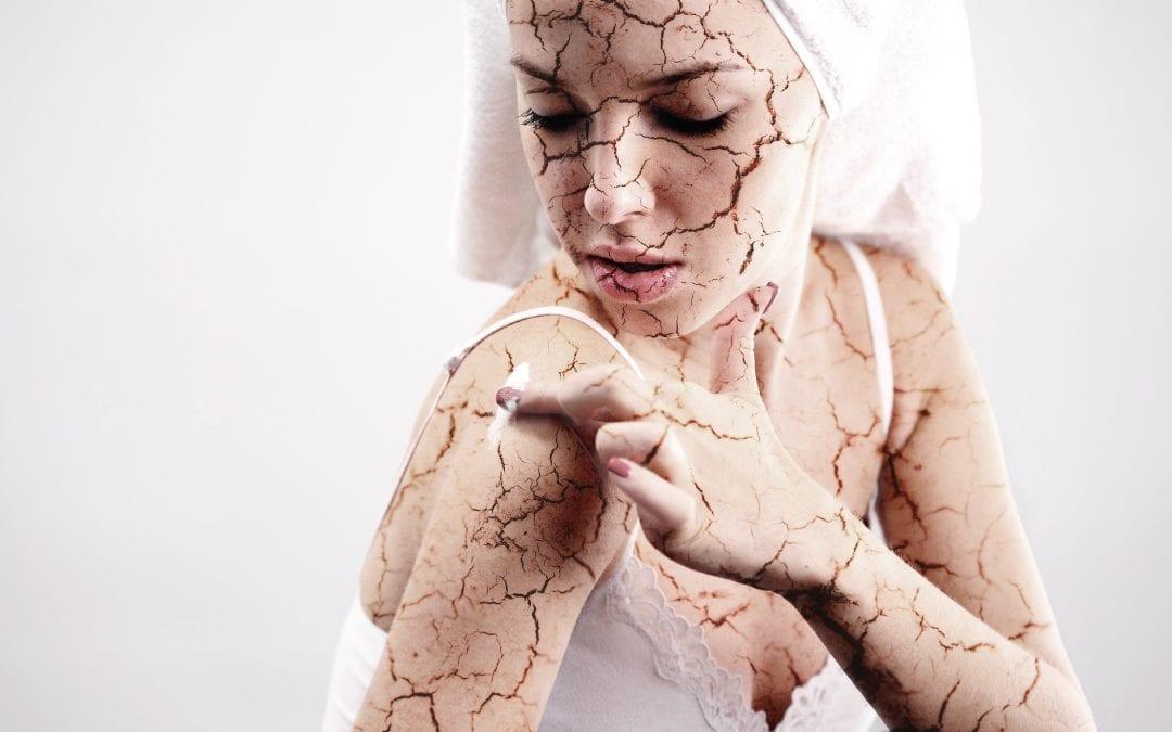 Piel seca a causa de ducharse sin filtro de ducha